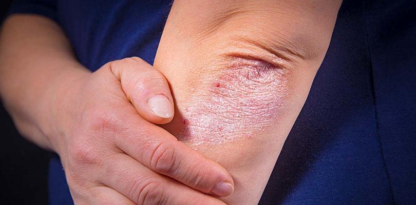 Psoriatic Arthritis Symptoms 8 Psa Symptoms To Be Aware Of